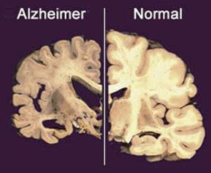 mal-de-alzheimer-sintomas